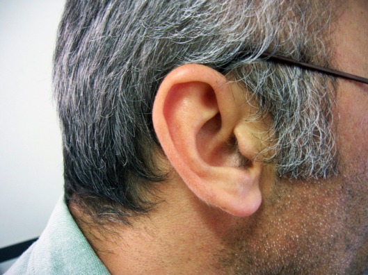 orejas-varias-1439442-1280x960